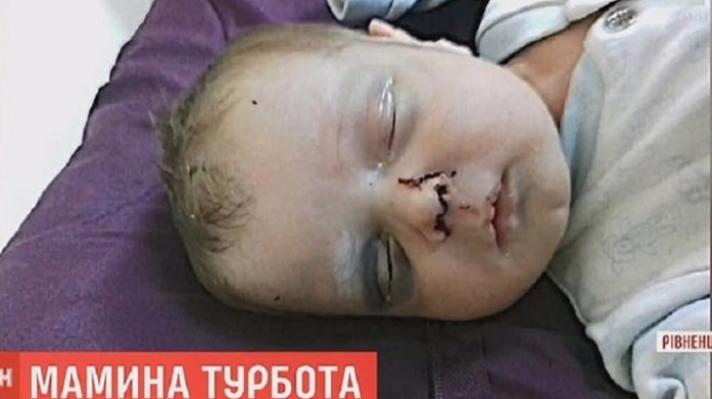 Φρίκη στην Ουκρανία: Μητέρα έσπασε στο ξύλο το ενός μηνός μωρό της - Δίνει μάχη για τη ζωή του - ΦΩΤΟ