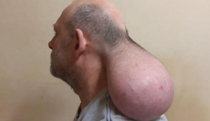 Κρατούμενος στις φυλακές Νιγρίτας εκπέμπει SOS: Έβγαλα δεύτερο κεφάλι - ΒΙΝΤΕΟ